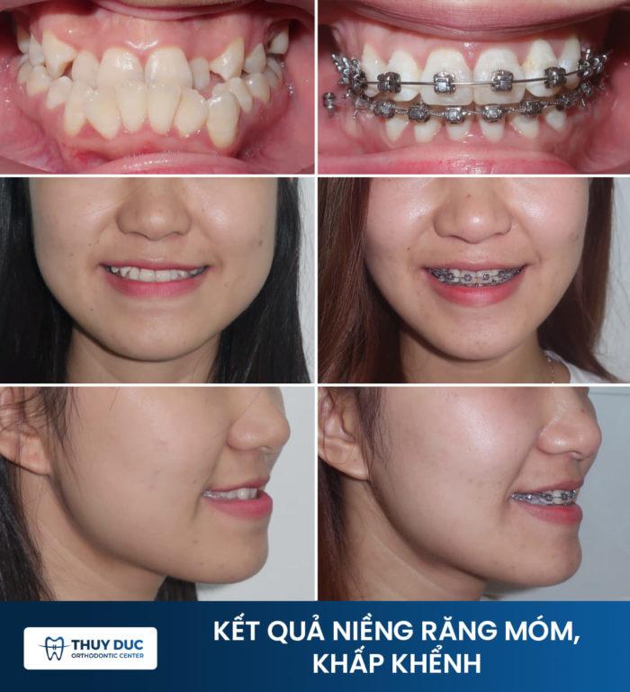 Phương pháp niềng răng mắc cài 1