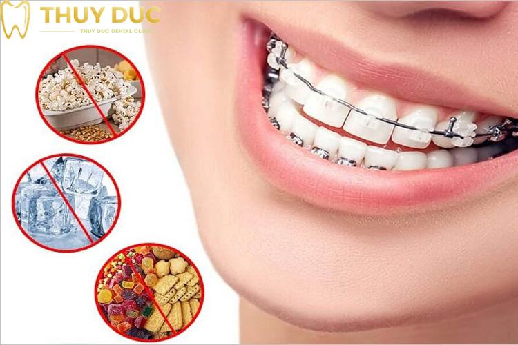 Chăm sóc răng miệng sai cách 1