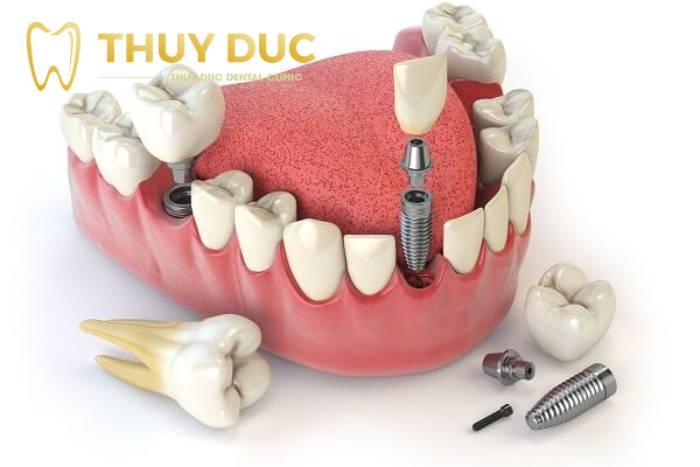 Trồng răng có giữ được vĩnh viễn không? 1