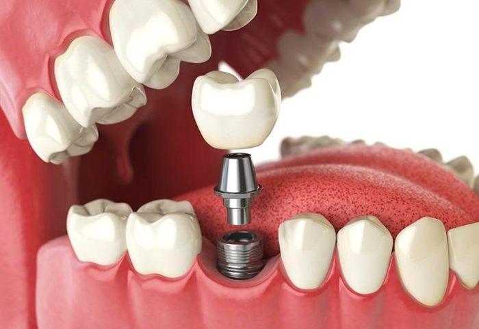 Đặc điểm của trụ implant Dentium Hàn Quốc 1