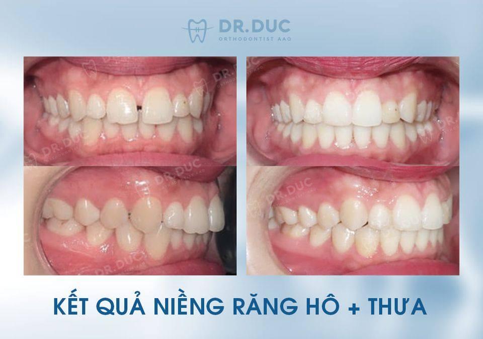Hình ảnh review khách hàng - trước sau niềng răng thưa tại Nha khoa Thúy Đức 4