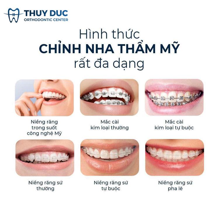Hình ảnh các phương pháp niềng răng tại Nha khoa Thúy Đức hiện nay 1