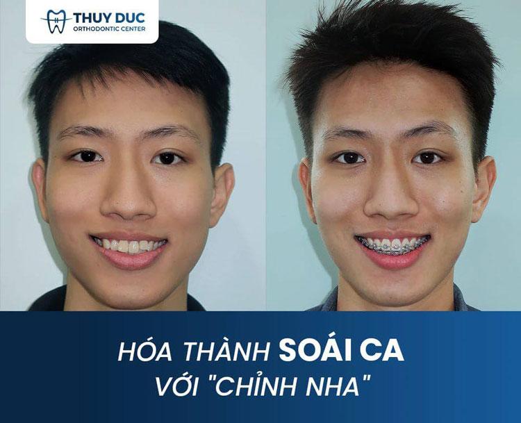 Hình ảnh niềng răng với mắc cài kim loại 3