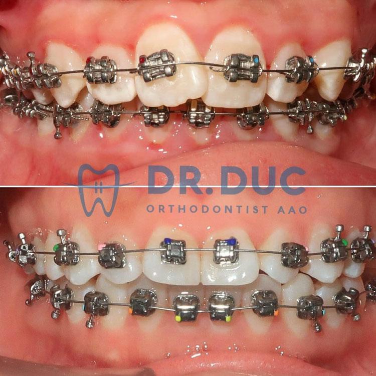 Hình ảnh niềng răng với mắc cài kim loại 2