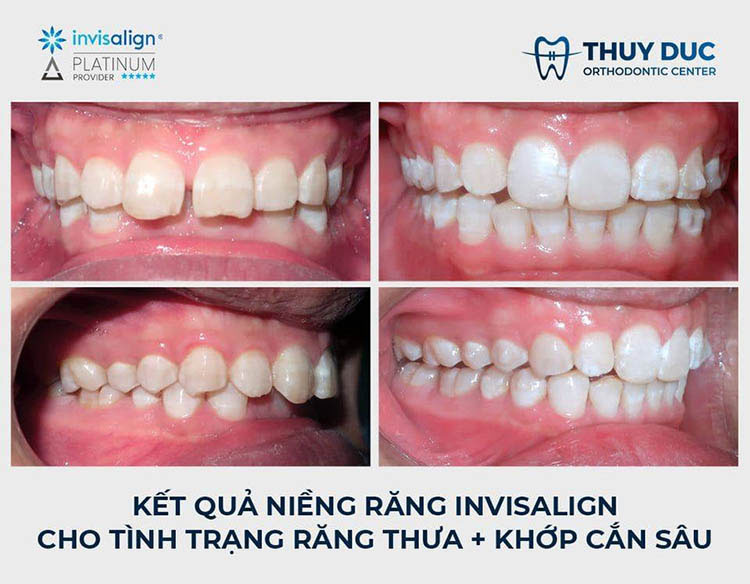 Niềng răng trong suốt Invisalign 2