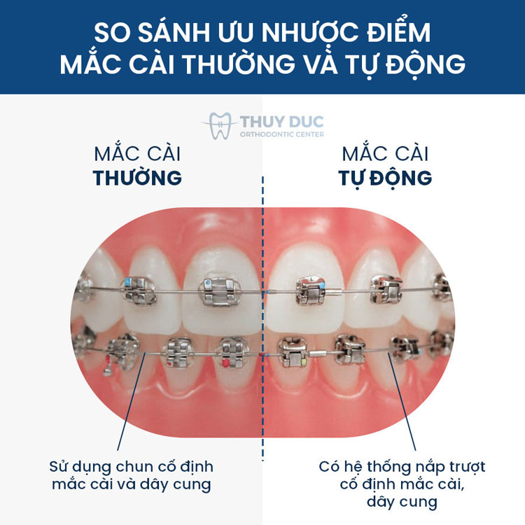 Hình ảnh niềng răng với mắc cài kim loại 1