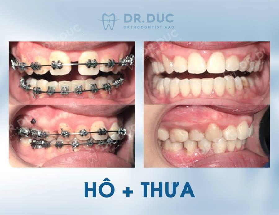 Hình ảnh review khách hàng - trước sau niềng răng thưa tại Nha khoa Thúy Đức 2