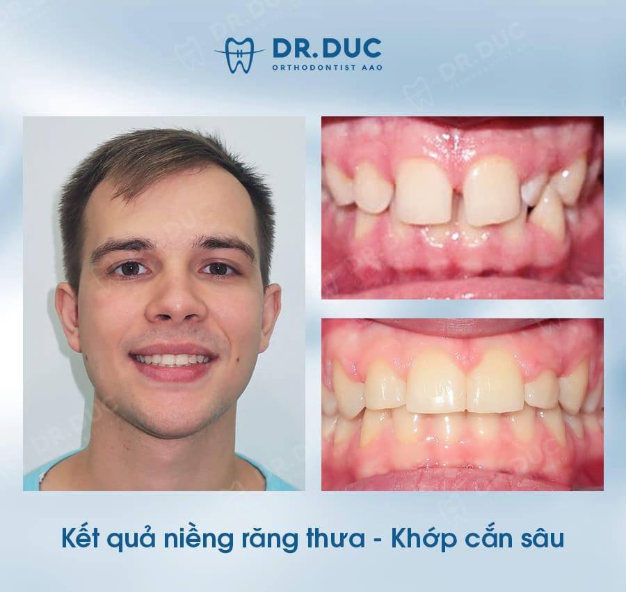 Hình ảnh review khách hàng - trước sau niềng răng thưa tại Nha khoa Thúy Đức 3