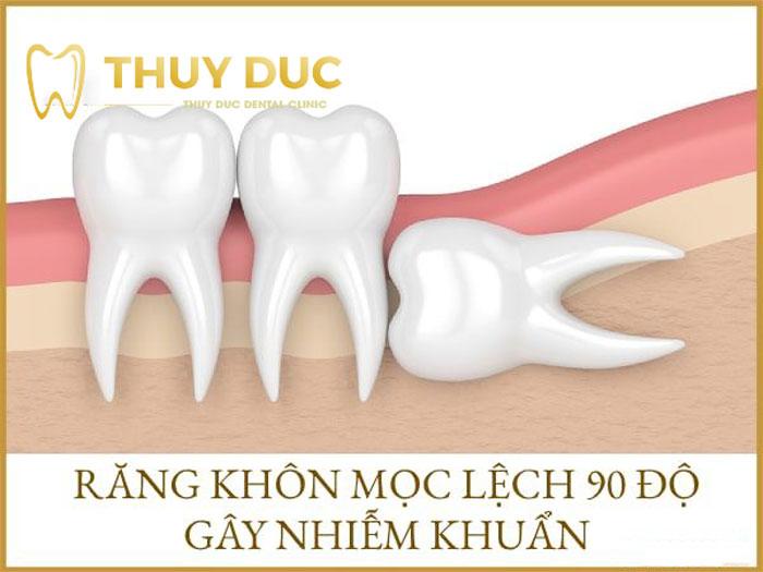 Nhổ răng khôn mọc lệch 90 độ liệu có ảnh hưởng gì không? 1