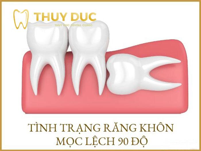 Khi nào nên nhổ răng khôn mọc lệch 90 độ? 1