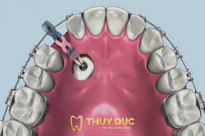 Răng mọc ngầm 1
