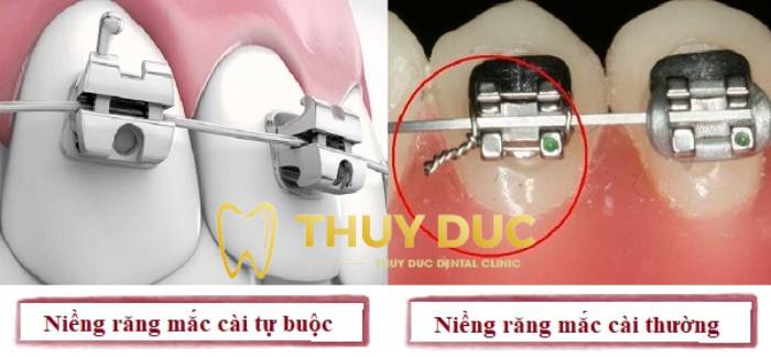 Phương pháp niềng răng thưa bằng mắc cài 3