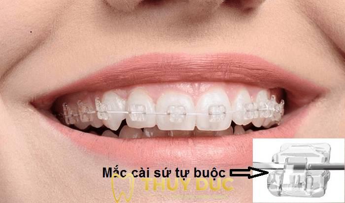 Phương pháp niềng răng thưa bằng mắc cài 4