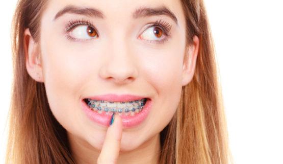 Niềng răng hay bọc răng sứ tốt hơn?