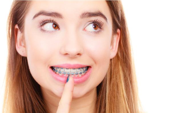 Niềng răng hay bọc răng sứ tốt hơn? 1